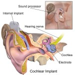 blausen_0244_cochlearimplant_01