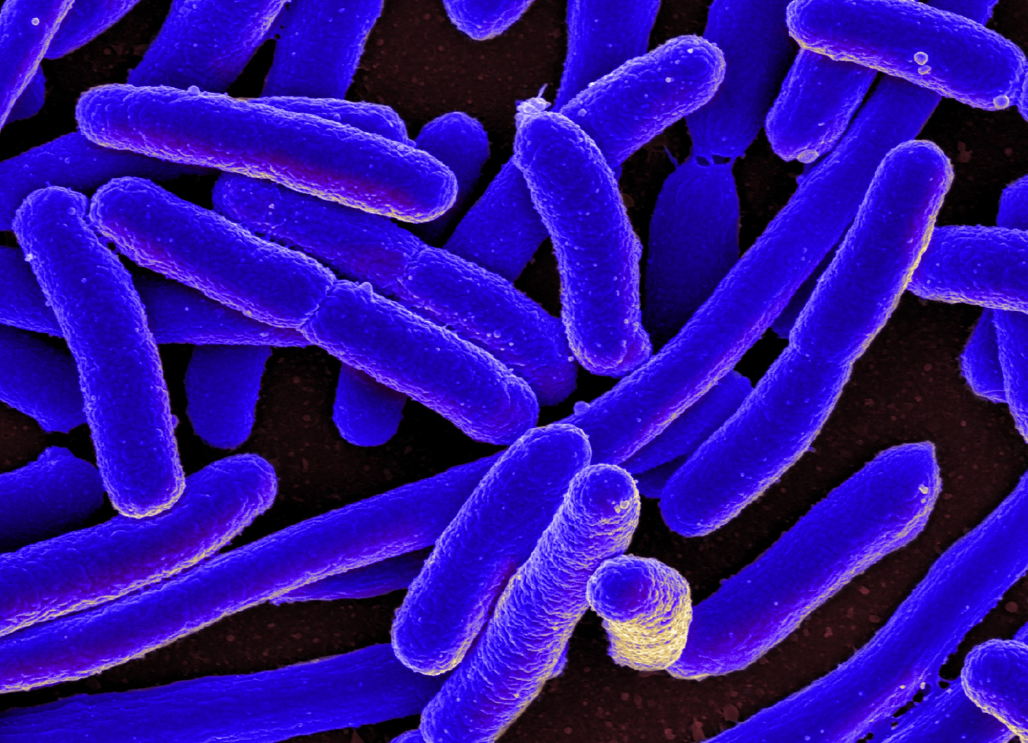 Scientists have zeroed in on how certain antibiotics may have the unintended effect of strengthening bacteria. Photo: NIAID // Wikimedia Commons.