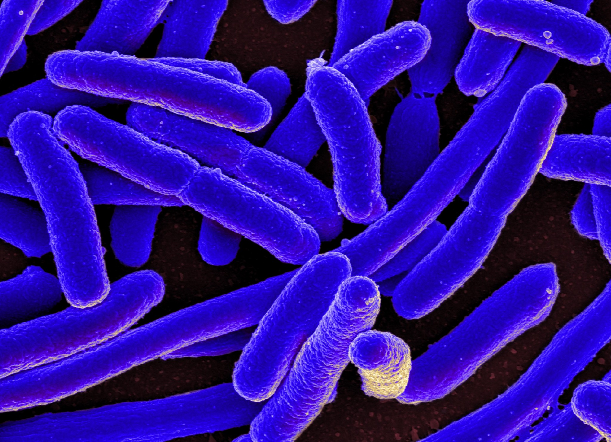 E. Coli. Image: Wikimedia Commons.