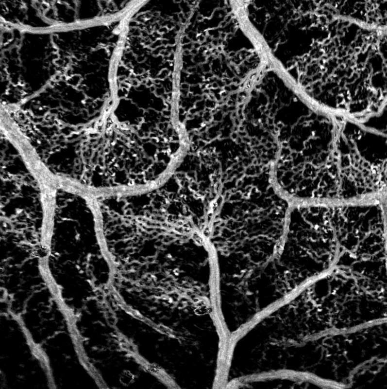 Реконструированная карта кровеносных сетей эмбриона цыпленка, полученная методом адаптивной покадровой пороговой фильтрации серии изображений движущихся эритроцитов. Источник: Максим Курочкин/Сколтех