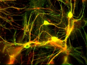 Neuroscience applications are greatly developing world-wide. Image courtesy of sop.infria.fr